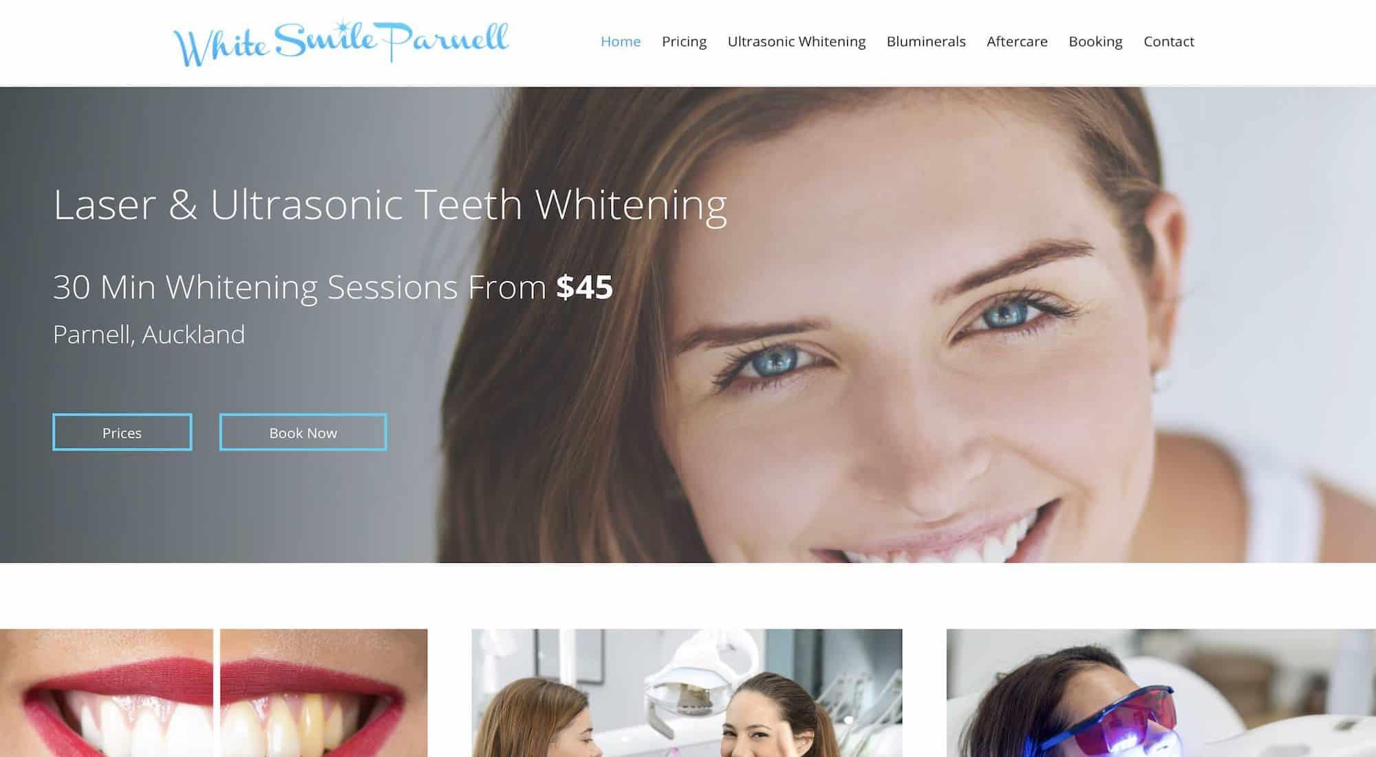 White Smile Parnell